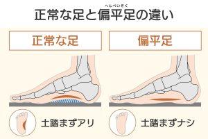 正常な足と偏平足の違い